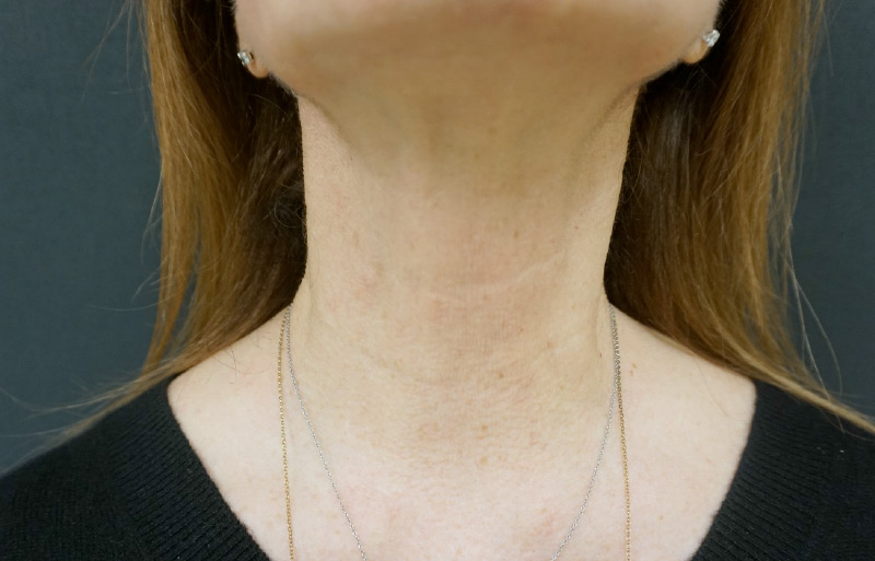 Botox neck after