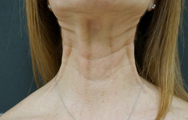 Botox neck before